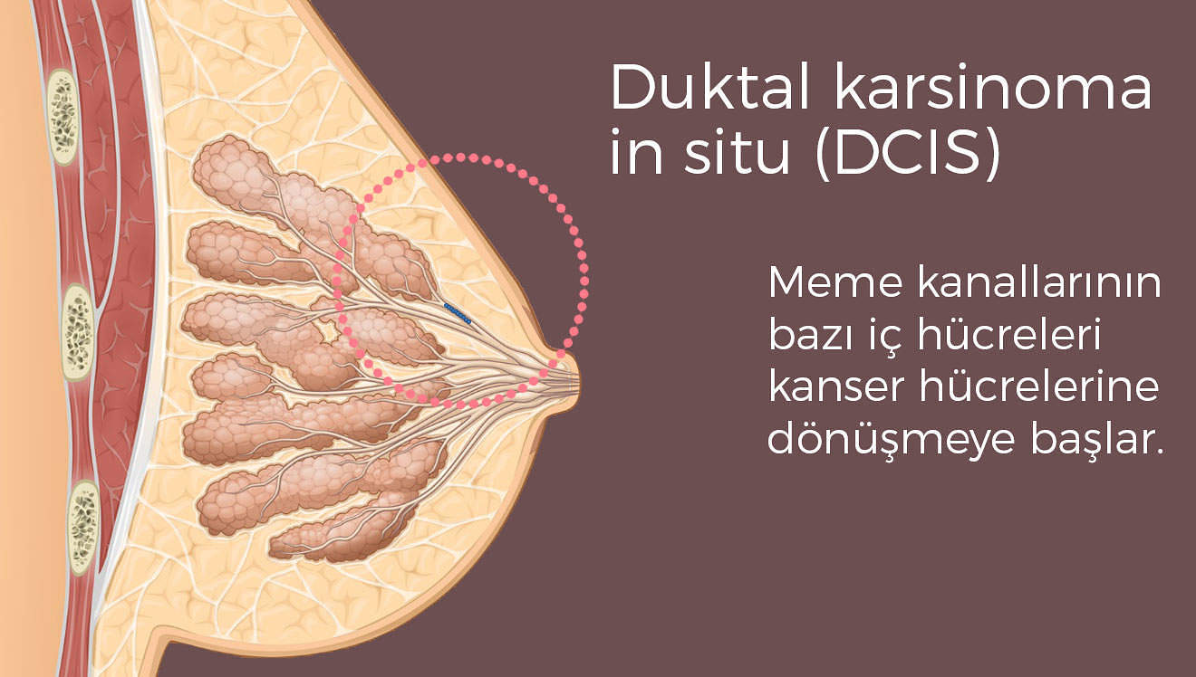Duktal karsinoma in situ