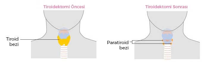 Tiroidektomi