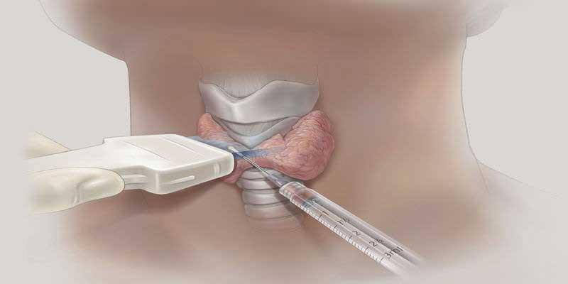 tiroid kanserinde tanısal yontemler ince iğne aspirasyonu
